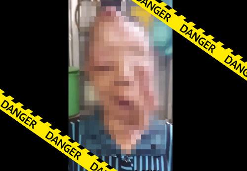 【グロ動画】顔面をガンに犯されてしまったおばあさんの悲惨な姿がこちら・・・