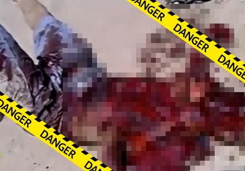 【グロ動画】自爆テロ失敗!悲惨な姿で生き残ってしまったテロリストがこちら・・※閲覧注意