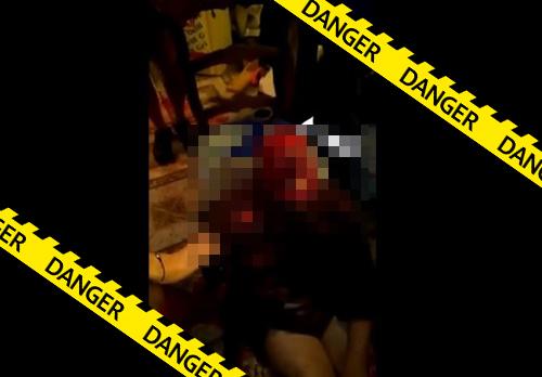【グロ動画】野犬に襲われた女、顔面を食いちぎられてモンスターになってしまう・・※閲覧注意