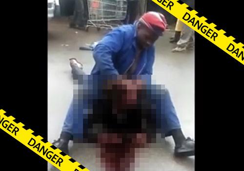【グロ動画】コンゴという国では喧嘩で負けると目ん玉をくりぬかれるらしい・・※閲覧注意