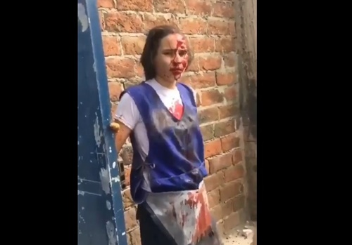 【閲覧注意】エクアドルの工場での爆発事故と、その被害者の映像