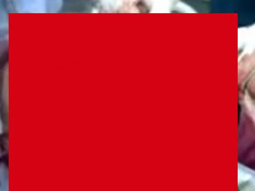 【超閲覧注意】ショットガン自殺に失敗した男、この顔面で生き残る・・・(動画あり)