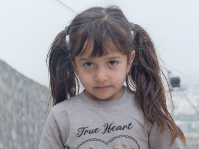 """【超閲覧注意】5歳の幼女、精神病の母親に虐待され """"こうなる""""・・・(画像)"""