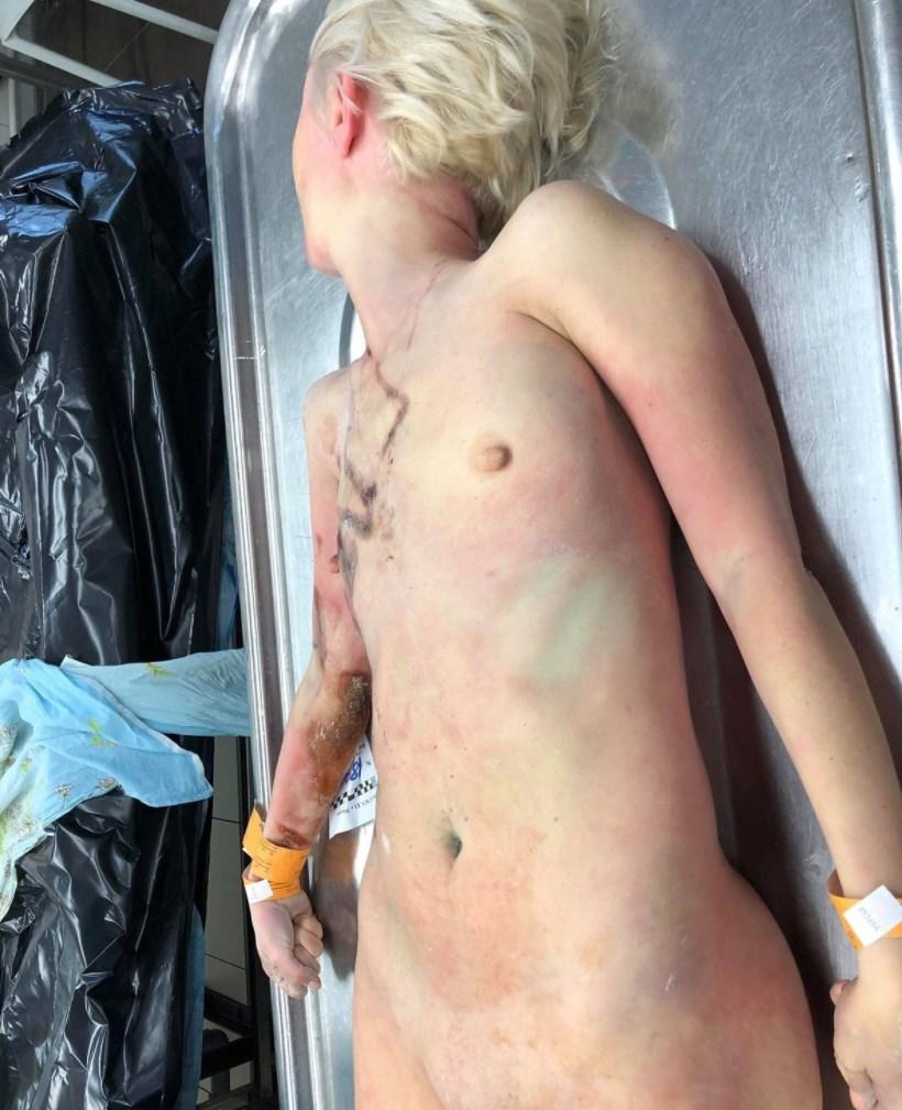 【閲覧注意】感電死した若い娘の全裸遺体、正直エロいと話題になってしまう・・(画像6枚)