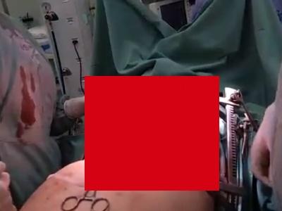 【超閲覧注意】手術中の患者、ドキドキしているのが医者にバレバレだった(動画あり)